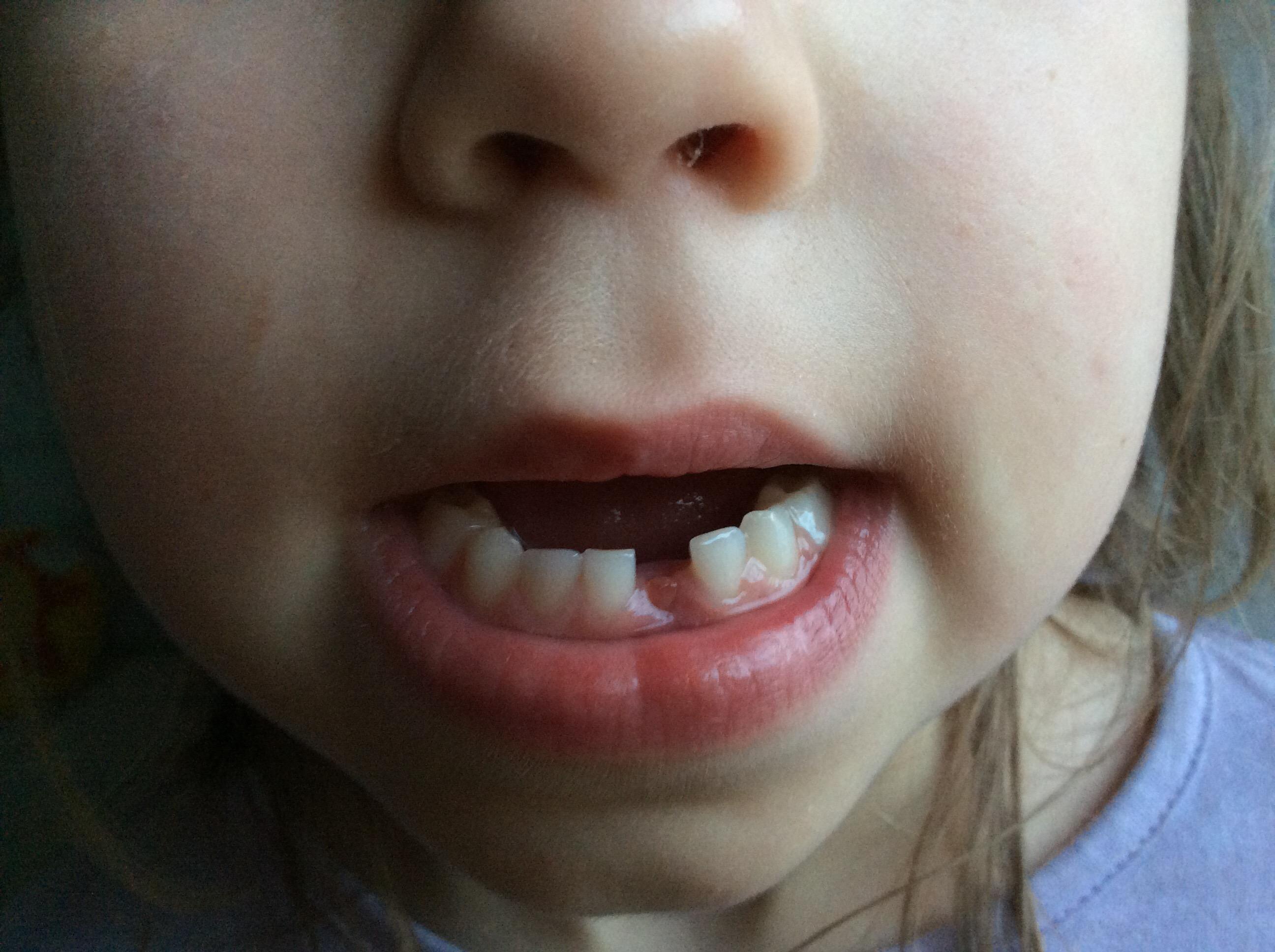 erste Zahnlücke